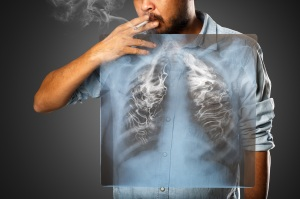 chances of surviving lung cancer